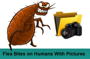 Flea Bites on Humans With Pictures