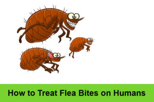 How to Treat Flea Bites on Humans